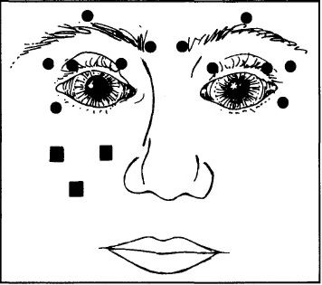 sketch of face showing injection sites